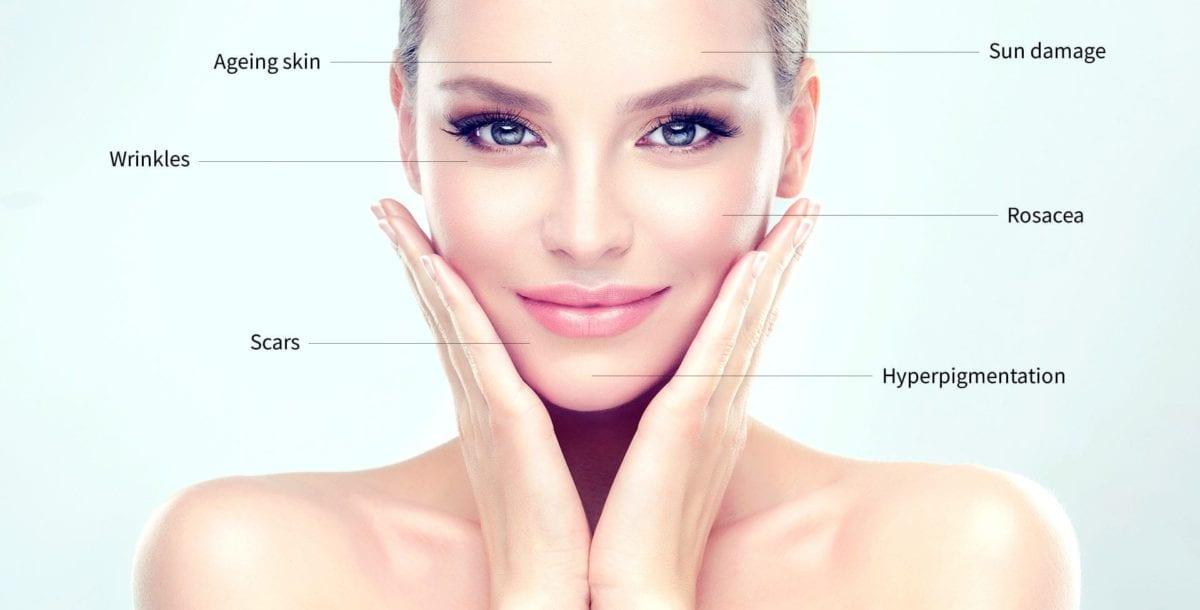 Best Microneedling Treatment Toronto Collagen Induction